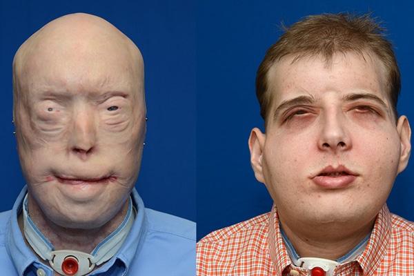 Der Vergleich vor und nach der Operation. Foto: NYU Langone